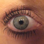 Latisse and Dark Spots On Eyes: Dr. Herzog Weighs In