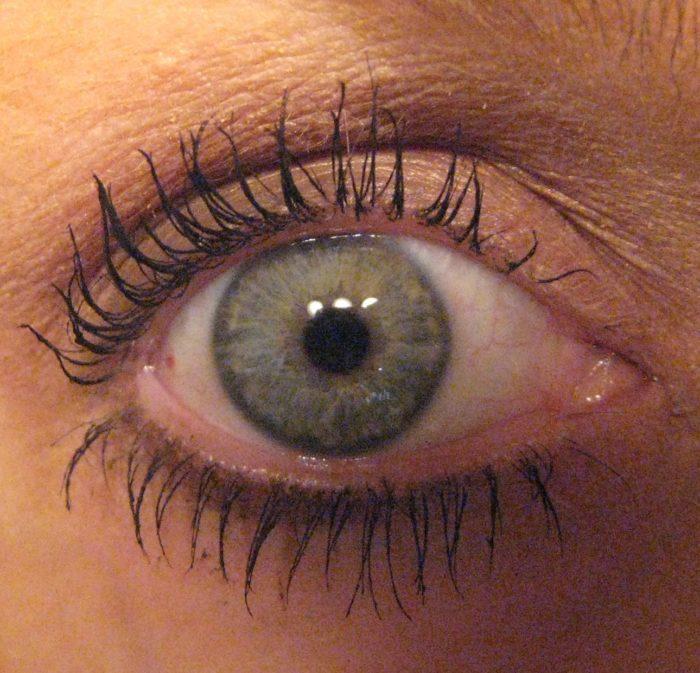 Latisse and Dark Spots On Eyes: Dr. Herzog Weighs In