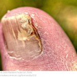 Nail Fungus Treatment and Prevention: Advice From Dr. Herzog