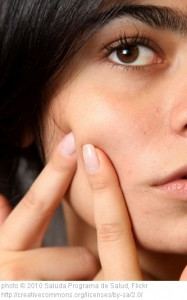 teenage acne
