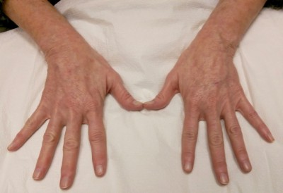 how to make hands look years younger....