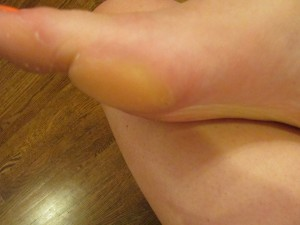 how to remove callous
