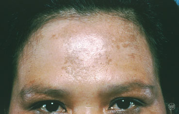 Treating Hyperpigmentation and Melasma: Part 1