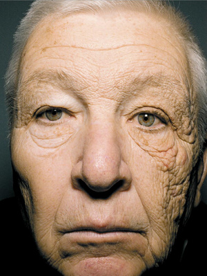 Powerful Photo Should Motivate Us All To Use Sunscreen