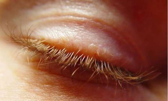 Red, Inflammed Eyelids: Advice From Dr. Herzog