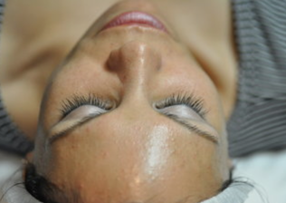 Dr. Herzog On The Potential Hazards Of At-Home Chemical Peels