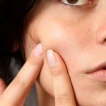 acne: do certain foods trigger?