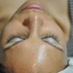 "Skin Tightening ""Deals""–A Dermatologist's Advice"